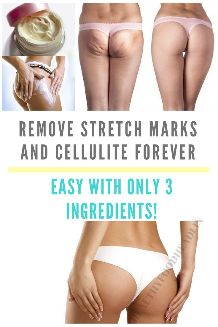 remove-stretch-marks-and-cellulite-forever-easy-with-only-3-ingredients