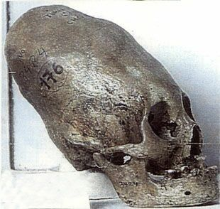 Many elongated skulls like this one have been found all over the world. Archeologists always suggest that the skulls are either deformed or were manipulated to become this shape. We can't know this for sure though - maybe we had larger brains back then?