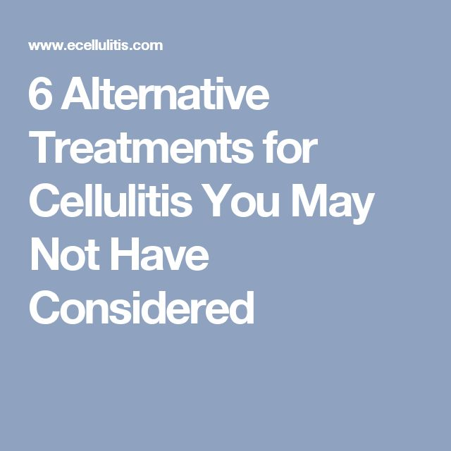 6 Alternative Treatments for Cellulitis You May Not Have Considered