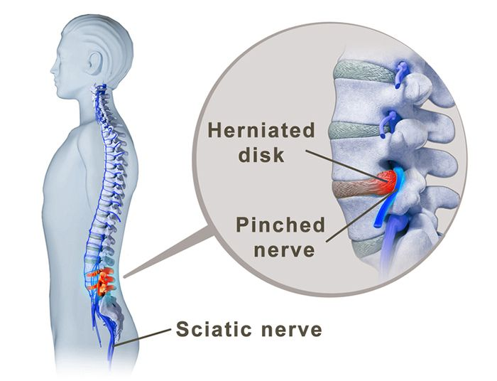 Spinal Fusion Surgery for Isthmic Spondylolisthesis