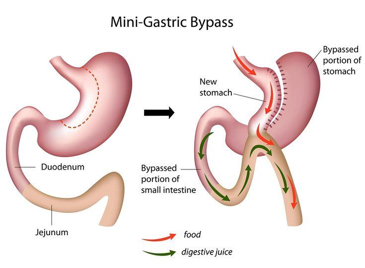 Le célèbre by-pass gastrique en image