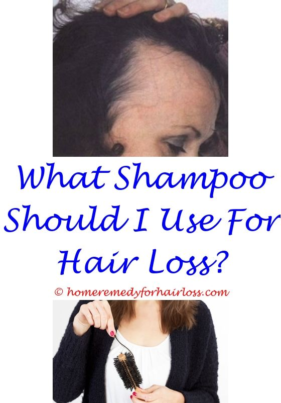 egg yolk hair loss forum - can creon cause hair loss.fda approved hair loss treatment 2015 lack of estrogen causes hair loss precuesers to hair loss 2153519521