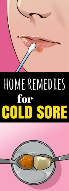 Clear Up A Cold Sore & 1 Of These 5 Home Remedies…!!!