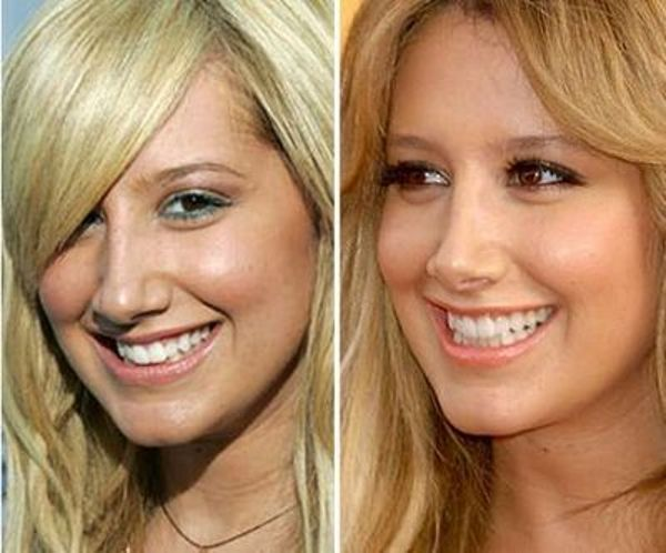 Ashley Tisdale- nose job