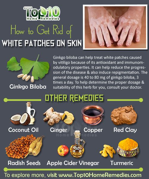 How to Get Rid of White Patches on Skin, Vitiligo