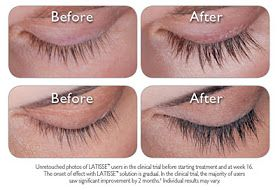 #Latisse Check out a Before and After of eye lashes when ...