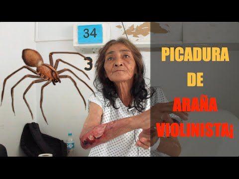 Sra. Violeta Chiñas - Paciente con Picadura de Araña Violinista en Cua...