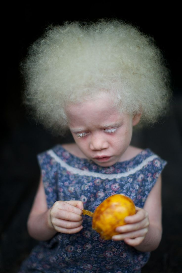 a lovely Albino girl on the northern rim islands of Papua New Guinea | Photograph by Simon Lister