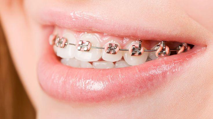 Orthodontists warn against diy braces pink braces cute