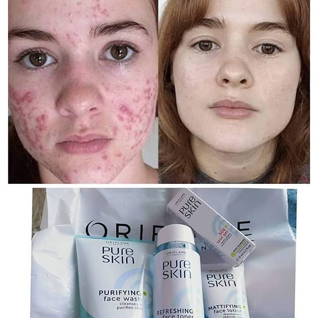 New The 10 Best Outfit Ideas Today With Pictures Amazing Review Of Pure Skin For Order In Box U Oriflame Beauty Products Toner For Face Online Cosmetics