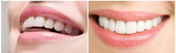 Hàm răng khỏe mạnh trắng sáng đều màu sẽ giúp đạt được kết quả đính đá vào răng tốt nhất