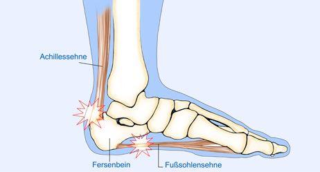 Schmerzen an der Ferse beim Stehen, Gehen, Laufen, Springen kennen viele Menschen, nicht zuletzt sportlich aktive. Lesen Sie, wie es wieder besser läuft
