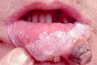 Cell cancer the squamous oral tongue of