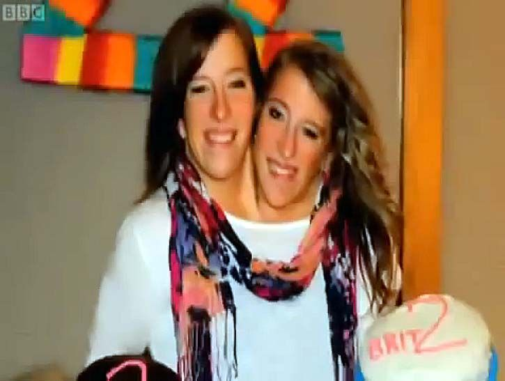 "(2 Videos) This is the phenomenal story of Abigail and Brittany Hensel, #conjoined_twins with two minds and one vigorous, healthy body. Says their mother, ""Their personalities make them inspirational. They never give up; anything they want to do, they go out and do it. http://www.womanyes.com/two-minds-one-body-abigail-brittany-hensel-2-videos"