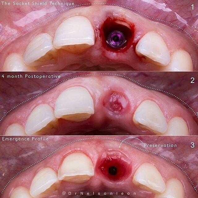 Repost by: @drnelsonleon Preservación ósea mediante técnica del escudo alveolar - control 6 meses. Traducción l Translation. Bone preservation through the socket shield technique - 6 months follow up. #atriumaxilofacial #implante #dental #odontologia #maxilofacial #cirugia #dentistry #surgey #venezuela #dentist #oralsurgery #odontology #student #art #smile by odontologystudent Our Oral Surgery Page: http://www.myimagedental.com/services/oral-surgery/ Google My Business…