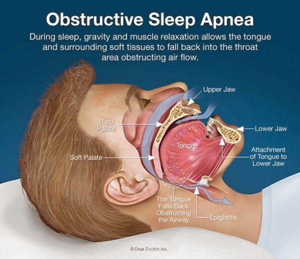 Studio Dentistico Balestro: Sindrome delle apnee ostruttive nel sonno
