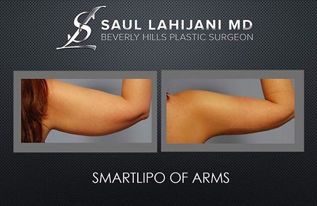 Dr. Saul Lahijani achieves excellent results through a low pain, highly efficient process. The procedure is done using microcannulas that dissolve the fat cells and use a gentle suction massage to help remove the dissolved fat out of the arms providing excellent cosmetic results. Liposculpture of the arms is almost exclusively a procedure for women. During the initial consultation Dr. Lahijani will assess important factors such as age, weight gain and loss history, and the location and…