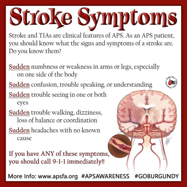 18 Best Images About Stroke & Tia Information On Pinterest. Outdoor Party Signs Of Stroke. Ral Uwsa Signs. Deficits Signs. Barn Board Signs. Protocol Signs Of Stroke. Lonely Signs Of Stroke. Personas Mayores Signs. Irritant Signs