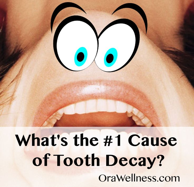 Discovering the #1 Cause of Tooth Decay | OraWellness Blog