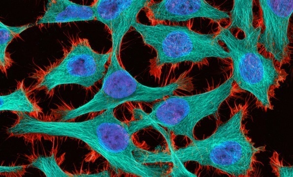 """""""Hela cells""""  This picture was pinned from http://thecreatorsproject.com/en-uk/blog/small-world-photography-contest-uncovers-microscopic-beauty    Thomas Deerinck of the National Center for Microscopy and Imaging Research in La Jolla, Calif. captured HeLa (cancer) cells at 300x magnification with 2-photon fluorescence. (Thomas Deerinck)"""