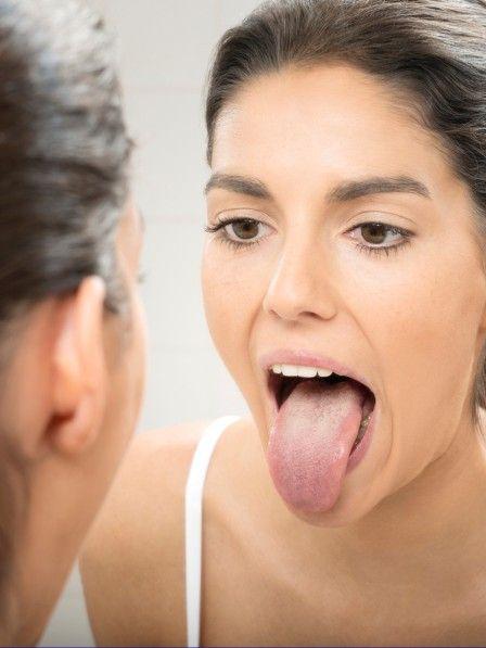 Struktur und Farbe der Zunge verraten Krankheiten