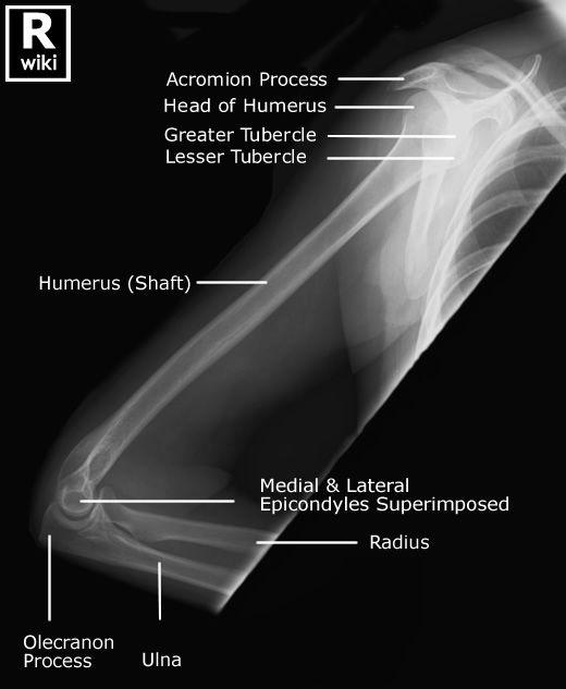 Radiographic Anatomy - Humerus Lateral