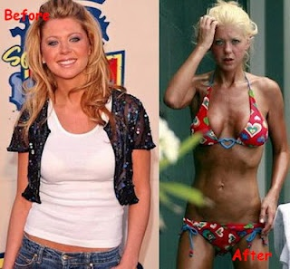 Tara Reid's Bad Plastic Surgery
