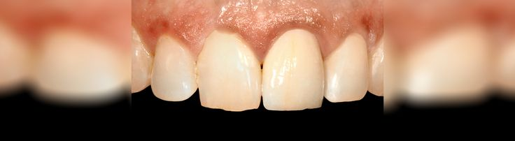 Sei alla ricerca di un dentista per impianti dentali, un endodontista, un dentista pediatrico, un ortodontista? Vi invitiamo a vedere tutto qui e contattaci subito! http://www.intermedline.com/dental-clinics-romania/ #clinicadentale #clinicadentaleinRomania #clinicaodontoiatrica #clinicaodontoiatricainRomania studiodentistrico #studiodentisticoinRomania #clinichedentali #clinichedentaliinRomania #turismodentale #turismodentaleinRomania #dentista #dentistainRomania #dentisti…