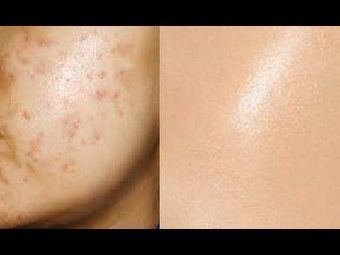 Come eliminare le cicatrici dell'acne - alfemminile.com