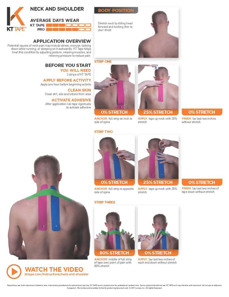 Pain in neck and shoulder? Try kinesiology tape