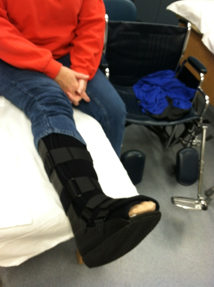 Best Ankle Surgery Recovery Images Pinterest
