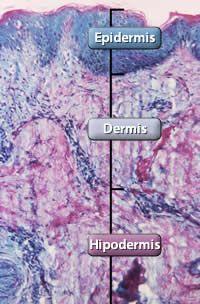 El cáncer de piel es el tipo de cáncer más común en los Estados Unidos. Los dos tipos de cáncer de piel más comunes, el carcinoma basocelular y el carcinoma espinocelular, tienen altas probabilidades de curación, pero pueden causar desfiguración y ser costosos. El melanoma, el tercer tipo de cáncer de piel más común, es más peligroso y causa la mayor cantidad de las muertes. La mayoría de estos tres tipos de cáncer de piel son provocados por la exposición a la luz ultravioleta (UV).