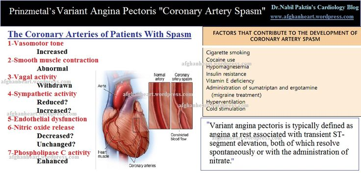 PRINZMETAL'S ANGINA: spasm, young women, nocturnal, ST elevation