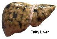 What is Fatty #Liver Disease? ( #FLD ) | Fatty liver, or Steatosis, is the buildup of fats in the liver. Fatty liver disease can cause permanent liver damage. The liver may enlarge and, over time, liver cells may be replaced by scar tissue. This is called Cirrhosis. The liver can't work right and you may develop liver failure, liver cancer, and liver-related death. The only way to confirm a diagnosis of fatty liver disease is with a liver biopsy. Learn more... * #hepatitis #liver #cirrhosis