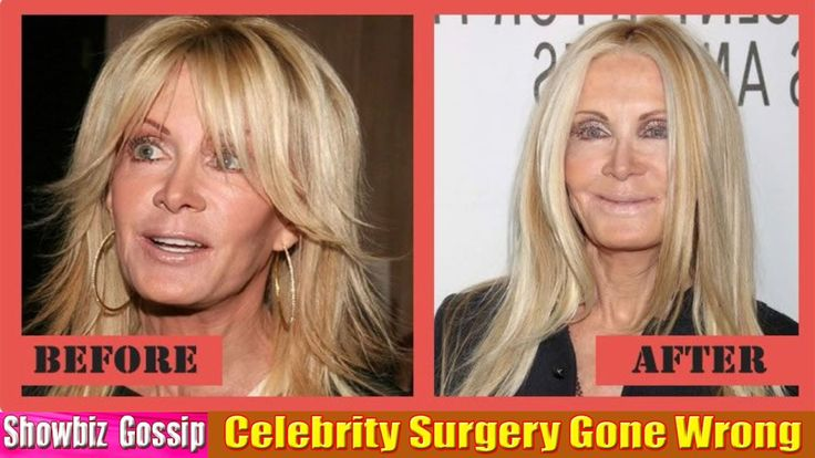 53 Worst Celebrity Surgery Gone Wrong Before After Photos. Part-1 (01-10)