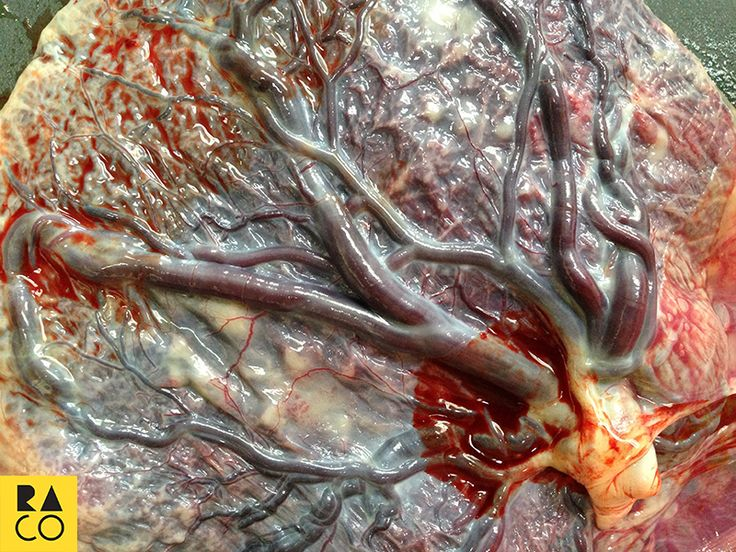 RaCo Life Iza's Placenta Laid Out