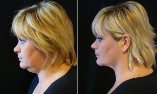 chin liposuction surgery, chin liposuction surgery treatment cost, chin…