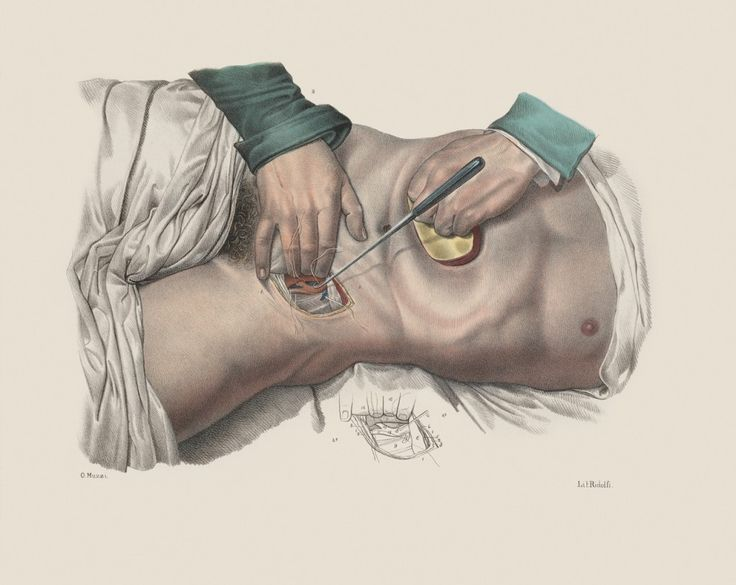 Jean-Baptiste Marc Bourgery (https://pinterest.com/pin/287386019948321810), N. H. Jacob, 'Iconografia d'anatomia chirurgica e di medicina operatoria,' (1841), Florence. Ligature of an artery in the inguinal region, using sutures and a suture hook, with compression of the abdomen to reduce aortic blood flow. Wellcome Library.  [Traité complet de l'anatomie de l'homme comprenant la médecine opératoire: https://pinterest.com/pin/287386019946919746…