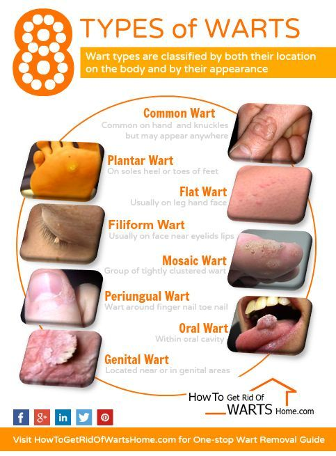 Overview of 8 different HPV wart types with picture: Plantar wart