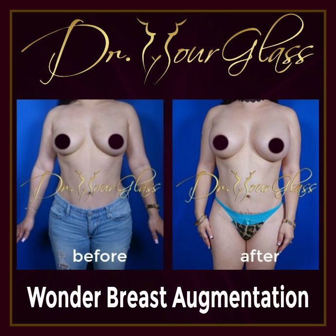 A Wonder Breast Augmentation is one of the most famous breast procedure today not only because it will enhance the size of your breast but it is also a systematic approach used to provide you a very nice shape with the maximum amount of volume to avoid future complications.