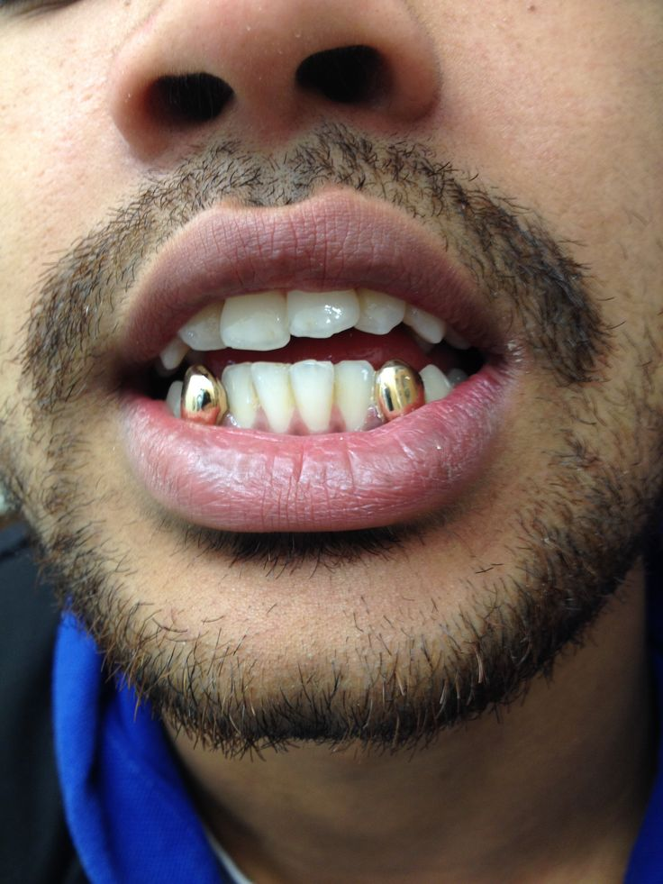 Gold Grillz Grillz Amp Gold Grillz Gold Teeth Und