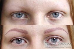 Pigmentacja medyczna brwi u osoby z alopecią.