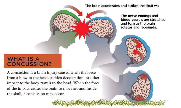 how to tell if an infant has a concussion