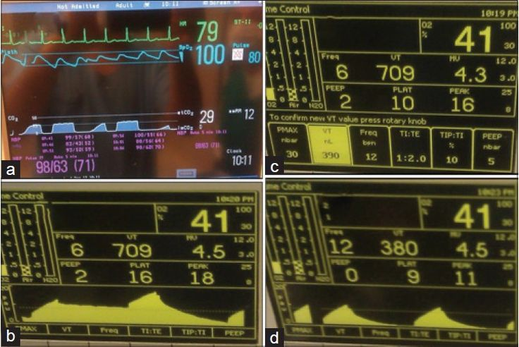 Figure 1: (a) Abnormal capnographic waveform shows alternate normal and abnormal wave. (b) Alternate normal and abnormal peak and mean airway pressures (Paw) waveform for set positive end-expiratory pressure (PEEP). (c) Abnormally high delivered tidal volume and half of the respiratory rate for set parameter. (d) Normal Paw waveform after PEEP was set to zero
