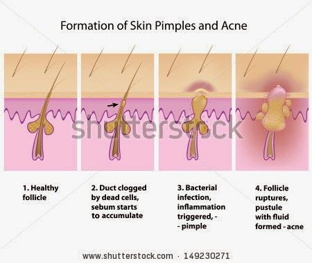 Best Tips to Curing Your Acne At First Sight | Health and News