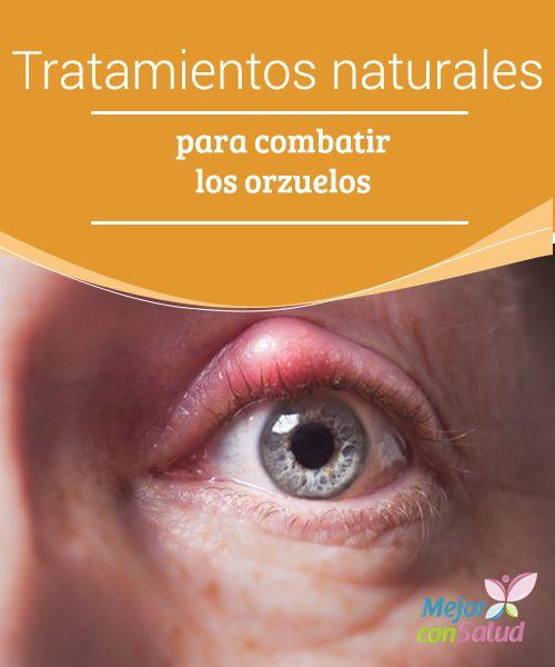 Tratamientos naturales para combatir los orzuelos Los orzuelos son una protuberancia formada en uno de los párpados de los ojos, a menudo como resultado de la inflamación de una glándula sebácea.