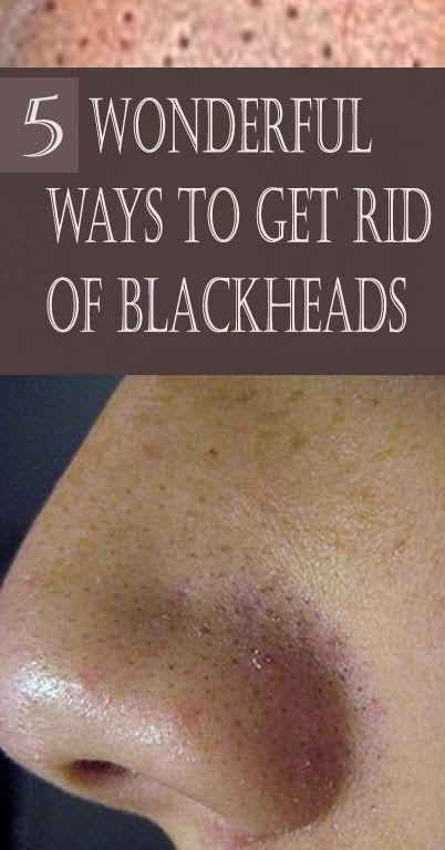 how to get rid of blackheads overnight diy