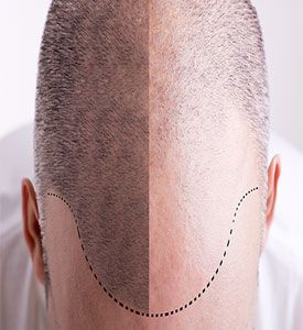 Follicular Unit Extraction or FUE Hair Transplant is a procedure through which you can enjoy re-growth of your hair on those areas where you have been experiencing hair thinning or baldness. For more details, please visit : http://www.nucosmeticclinic.com/men-fue-hair-transplant-bangalore-mumbai/