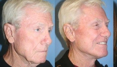 Obtain A More Younger Appearance With Facial Strengthening Aerobics