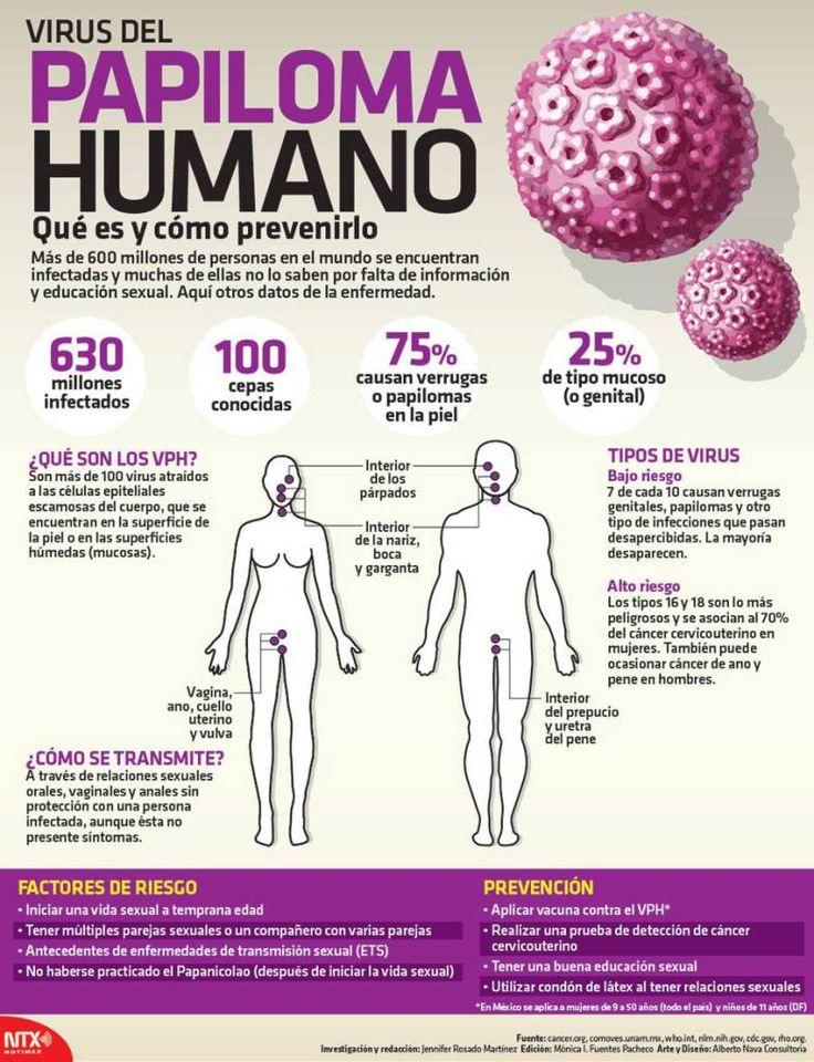#Infografia Virus del papiloma humano, qué es y cómo prevenirlo